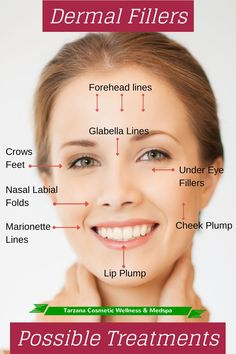What Are Dermal Fillers?: The Facts About Juvederm and Other Fillers