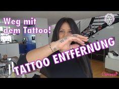 weg mit dem Tattoo- Anja Zeidler lässt Ihr Tattoo weglassen. #Tattoo, #weglasern, #anjaZeidler, #tattoolos #Schweiz