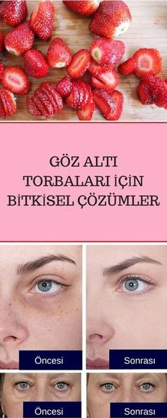 Herbal recommendations as a definitive solution to eye bags – sağlık … – Cosmetic Ideas Homemade Skin Care, Homemade Beauty, Beauty Care, Hair Beauty, Perfect Hair Color, Under Eye Bags, Skin Mask, Acne Skin, Diy Makeup