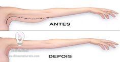 5 formas para acabar com a gordura e flacidez dos braços. O Dicas preparou-lhe 5 exercícios para tonificar os seus braços: