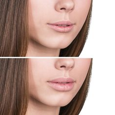 Now Get Big Lips easily at home with this amazing Simple Remedy . This remedy is very effective and needs only two ingredients .