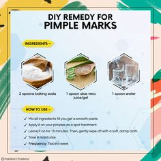 Acne scars are worst but home remedies for pimple marks can help. Learn with PaintedCharisma How to remove Pimple Marks Naturally,home remedies for pimple marks at home. Try Home remedies for acne scars. Home Remedies For Pimples, Natural Acne Remedies, Natural Acne Treatment, Spot Treatment, Clear Skin Face, Pimple Marks, How To Remove Pimples, Acne Solutions, Acne Scars