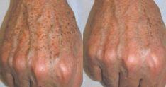 Πώς να απαλλαγείτε από τις κηλίδες στα χέρια Dark Spots On Skin, Beauty Recipe, Healthy Tips, Natural Skin, Body Care, Health And Beauty, Beauty Hacks, Remedies, Health Fitness