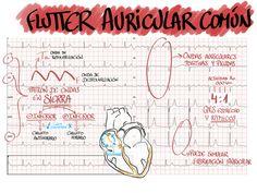 Flutter Auricular Común
