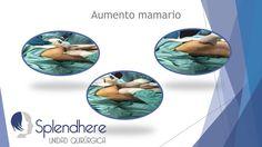 Implantes de Mamas - Breast Augmentation