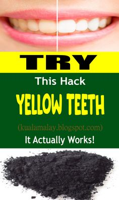 Everybody loathes yellow teeth. We all in all respects much of the time endeavor to assorted things to light up our yellow teeth however once in a while they don't work.