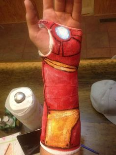 """I broke my wrist, and got bored of the plain ole cast. So I decorated it..... Iron Man style."""