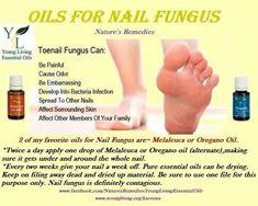Oils for toe fungus