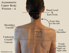 OMG! I LoVE this site! Overcoming Chronic Neck Pain: Postural Causes and A Unique Exercise Fix