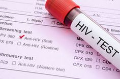 Sample blood collection tube with HIV test label. Stock Photography