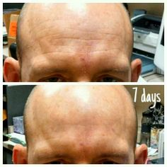 Yep, these are real results. Get your bottle of #Nerium risk free for 30 days. To order, go to cindyrowe.arealbreakthrough.com
