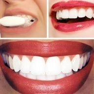 Dr. Ozs home remedy for teeth whitening -- Works but dont do it too often, it will make your teeth sensitive!  - Baking Soda (around 1/4 cup of baking soda) - Lemon Juice (from half of a lemon) Let sit on teeth one min and brush off with tooth paste and water.  * pinner says works best if GENTLY applied with a toothbrush. Saw results on first use. - Click image to find more Women's Fashion Pinterest pins