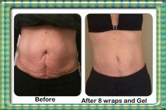 Before:Gastric bypass 28 years ago After: 8 wraps and daily application of Defining gel  This inspired my article: How to Tighten Loose Skin After Weight loss http://wp.me/p4yCUa-Po