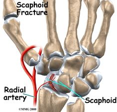 Physiotherapy in Banff for Wrist Pain - Scaphoid Fracture Ot Therapy, Therapy Tools, Massage Therapy, Physical Therapy, Nbcot Exam Prep, Study Cards, Pediatric Ot, Occupational Therapist, Athletic Training