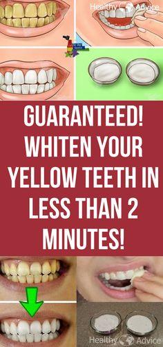 whiten teeth | teeth remedies | naturally | yellow teeth | guaranteed |