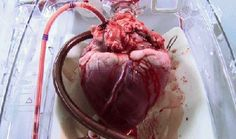 Wow! This is really intense if you think about it....abeating heart awaiting transplant