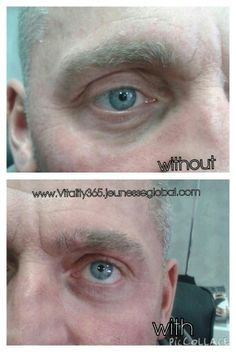 As popular with men as it is with women. Instantly ageless is awesome. Less wrinkles and puffiness in less than 2 minutes. Check out my website shown it the photographs.