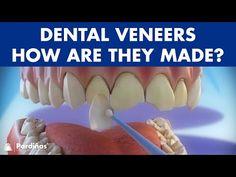 Veneers - How are they made? Preparation and placement of dental veneers © - YouTube Veneers Teeth, Dental Veneers, Dental Aesthetics, 3d Video, Oral Surgery, Dentist In, Dental Implants, Orthodontics, Oral Health