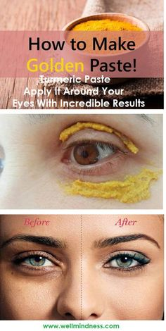 Turmeric Paste Apply It Around Your Eyes With Incredible Results - Home Health Solution