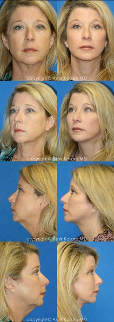 Full Face Fat Transfer, combined with Short Incision Facelift with Neck Lift, Upper and Lower Eyelid Blepharoplasty with Chemical Peel. The combination of procedures created a harmonious and balanced rejuvenation. Plastic And Reconstructive Surgery, Plastic Surgery, Lower Face Lift, Body Lift Surgery, Facelift Before And After, Facial Aesthetics, Fat Transfer, Neck Lift, Short Neck