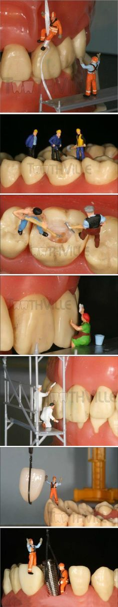 Tooth work