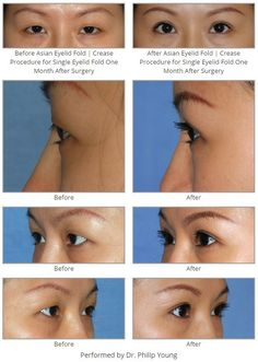 Before & After Asian Eyelid Fold | Crease Procedure for Single Eyelid Fold One Month After Surgery