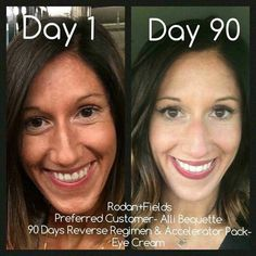 Are you ready to recover from that summer sun and get your natural glow back? Check out what our Reverse regimen can do for you! Message me for more information! #rf #reverse #jenamartinslovefororphansandskincare #sundamage