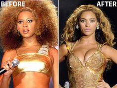 beyonce before and after breast implants
