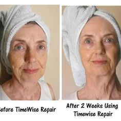 Customer Results. Before After using these amazing products! It really works! www.marykay.com/wvbirdie https://www.facebook.com/BirdieLipscombMaryKayBeautyConsultant/timeline#!/BirdieLipscombMaryKayBeautyConsultant?ref_type=bookmark