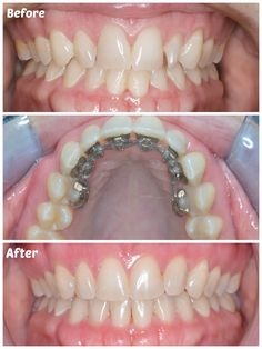 Adult Braces Incognito Limited Before & After picture by Tulsa Orthodontist Clint Emerson