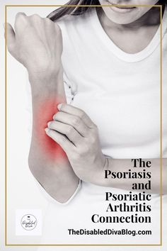 One in three people with psoriasis also has psoriatic arthritis. Those who don't may find it difficult to receive a diagnosis. Learn more about the symptoms and talk to your doctor.