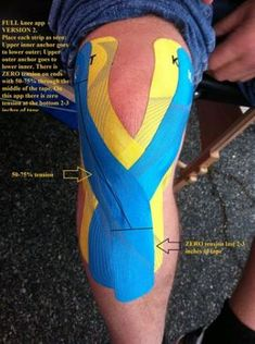 Full knee Taping - considering the potential for knee injuries I have a feeling we should all be doing this. Original article and pic. Knee Taping, K Tape, Hip Problems, Kinesiology Taping, Knee Exercises, Athletic Training, Sports Medicine, Knee Injury, Roller Derby