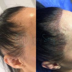 Women are tattooing their hairlines to make it look fuller Bad Hairline, Hairline Tattoos, Hair Tattoos, Buzz Cut Hairstyles, Diy Hairstyles, Permanent Makeup Eyebrows, Eyebrow Makeup, Scalp Micropigmentation, Microblading Eyebrows