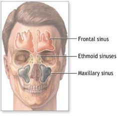 Home Remedies For Sinus - Natural Treatments & Cure For Sinus | Find Home Remedy