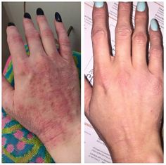 One product for natural skin wellness!  Used anywhere on the body. ZERO toxicology.  No steriods, no prescriptions.  Natural! Results are undeniable…… Changing lives, changing skin all around the world!