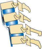 Forward Head Posture Fix Jaw Pain, Neck Pain, Sternocleidomastoid Muscle, Posture Fix, Drinks Before Bed, Sleep Apnea Remedies, Neck Bones, Accident Attorney, Trouble Sleeping