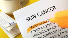5 Weird Places For Skin Cancer You Really Need To Check