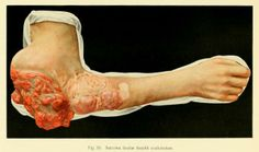 Sarcoma of the fascia of the arm from 'Iconograms; a collection of colored plates illustrating interesting surgical conditions' by Faxton E. Gardner, 1913. ~~ www.facebook.com/TheIrregularAnatomist ~~ www.twitter.com/Irr_Anatomist