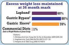 298 Best VSG - Vertical Sleeve Gastrectomy images ...