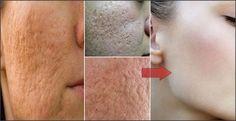Com apenas 1 ingrediente que você tem em casa,fecha os poros de seu rosto