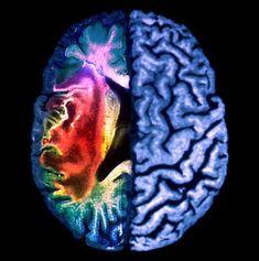 Migraine Brain Image
