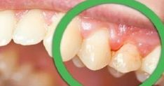 Cavities come from the breakdown of tooth tissue. It is permanent damage to the surface of your teeth that turns into small holes and black spots. So, you'll want to take necessary steps to prevent cavities from forming. How To Prevent Cavities, Black Spot, Hacks, Health Fitness, Treats, Beauty, Food, Rapunzel, Lifestyle