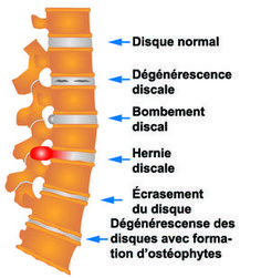 Disques lombaires Qi Gong, Lumbar Disc, Medical Memes, Human Body Art, Neurology, Anatomy And Physiology, Science Education, Yoga, Plastic Surgery