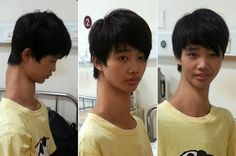 Teen With Amazingly Long Neck To Undergo Surgery : CHANKAY