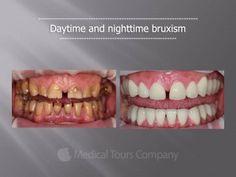 Teeth Grinding, Medical Information, Dental Health, Case Study, Conditioner, Stress, Desserts, Blog, Oral Health