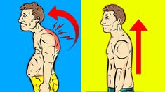 Learn how to fix rounded shoulders and slouched back posture. Bad posture can lead to a dowager's neck hump. This could further lead to shoulder pain. Fix Your Posture, Bad Posture, 6 Week Body Transformation, Neck Hump, Fix Rounded Shoulders, 6 Week Challenge, Shoulder Joint, Go Car, Back Day