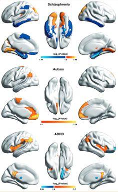 brain variability -  mental disorders vs. healthy