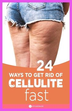 What Is Cellulite, Reduce Cellulite, Anti Cellulite, Arabic Baby Girl Names, Orange Peel Skin, Cellulite Exercises, Oil Mix, Dark Skin Tone, Aloe Vera Gel