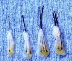 Hair Transplant Surgery: How Many Hairs are in a Follicular Unit Graft?