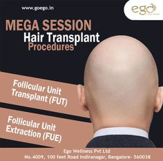 Ego wellness Bangalore saved to Hair Transplant Located in the Indranagar ‪#‎Bangalore‬, Ego Wellness is the best ‪#‎hairtransplant‬ clinic in Bangalore, offering the following MEGA session hair transplant procedures; Follicular Unit Transplant (‪#‎FUT‬) Follicular Unit Extraction (‪#‎FUE‬) Visit: www.goego.in